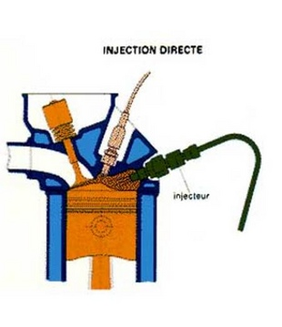 L'injection